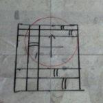 X線(レントゲン)けがき例1